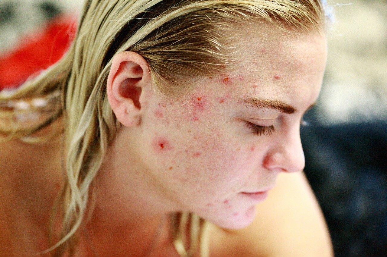 enlever les cicatrices d'acné